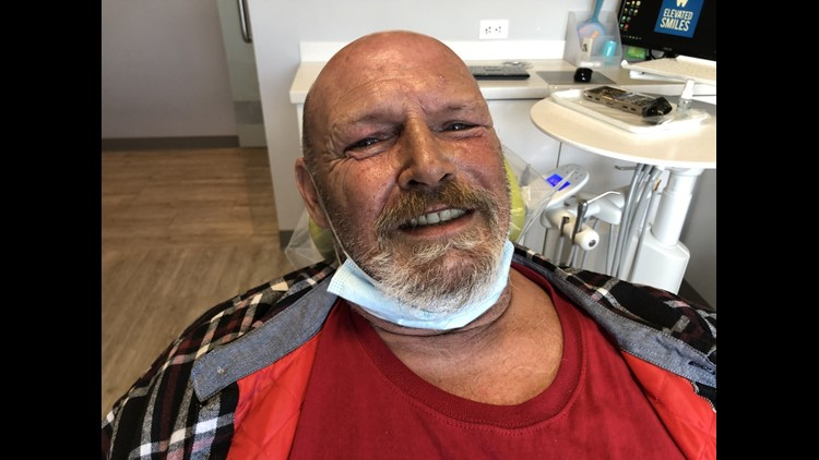 Former Ocean Beach homeless man receives new $8,000 smile for free