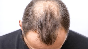 Verify: Are mom's genes to blame for male baldness?