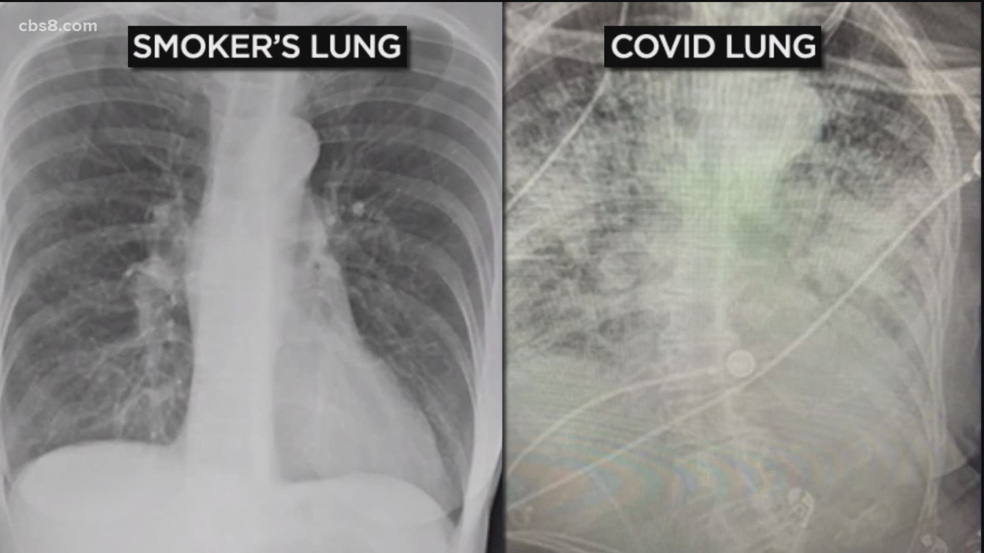 Are COVID-19 patient's lungs worse than smokers? | cbs8.com
