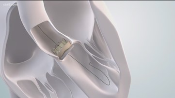 Heart Health Month: Info on the TAVR treatment option