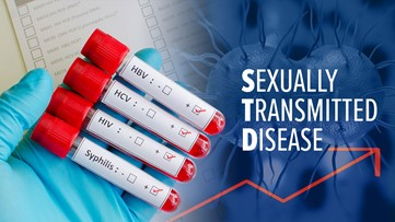 Sexually transmitted diseases in San Diego County hit 20-year high, STDs at 30-year high in California
