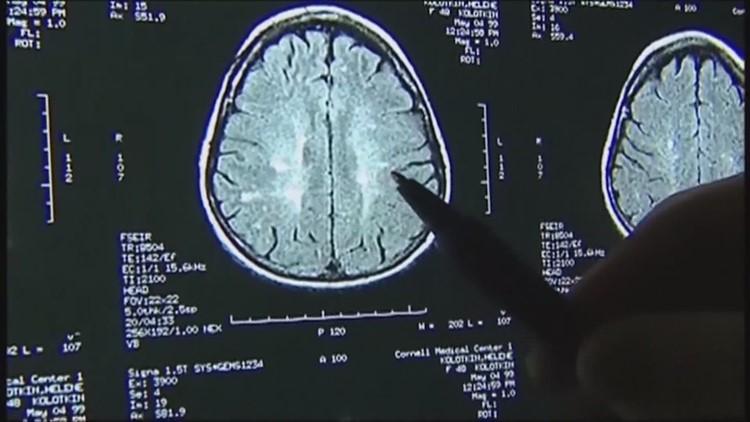 Study indicates COVID-19 causes brain damage, even in mild cases