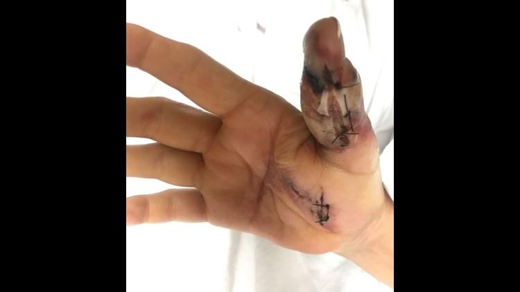 Thumb post-surgery