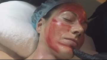 2 diagnosed with HIV after 'vampire facials' at New Mexico spa
